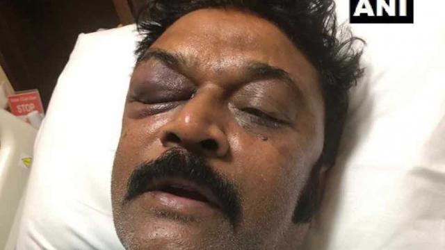 कर्नाटक कांग्रेस विधायक मारपीट: जेएन गणेश पार्टी से निलंबित, एफआईआर दर्ज