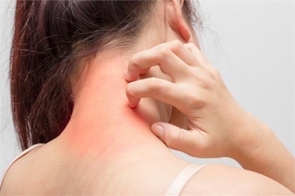 मानसून के उमस भरे इस मौसम में त्वचा के संक्रमण (स्किन इंफेक्शन) से छुटकारा पाने के उपाय !