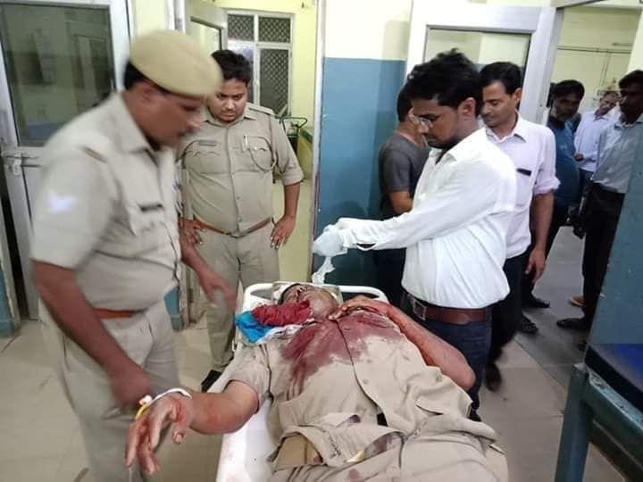 प्रतापगढ़ में डायल 100 पर बदमाशों का हमला, मुख्य आरक्षी भोलनाथ को लगी गोली