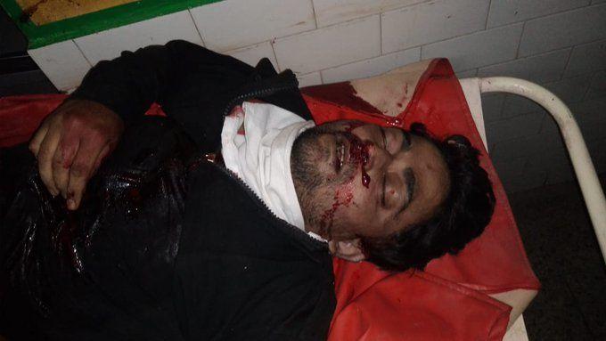 कुछ इस तरह हुआ प्रेम कहानी का अंत,  बिजनौर में ट्रिपल मर्डर के आरोपी जॉनी ने गोली मारकर खुदकुशी कर ली