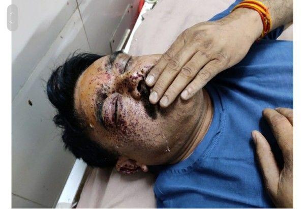 झाँसी में बदमाशों ने थानेदार को मारी गोली, एनकाउंटर में मारा गया आरोपी खनन माफिया