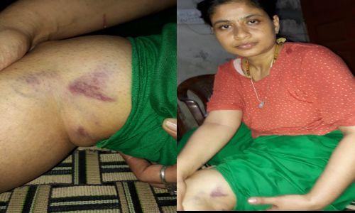 यूपी के गाजियाबाद में महिला आईएएस रानी नागर के सामने उसकी सगी बहन को बुरी तरह पीटा