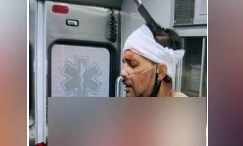 सिर में घुसे चाकू के साथ घूम रहा था शख्स, मदद के बजाय वीडियो बना रहे थे लोग